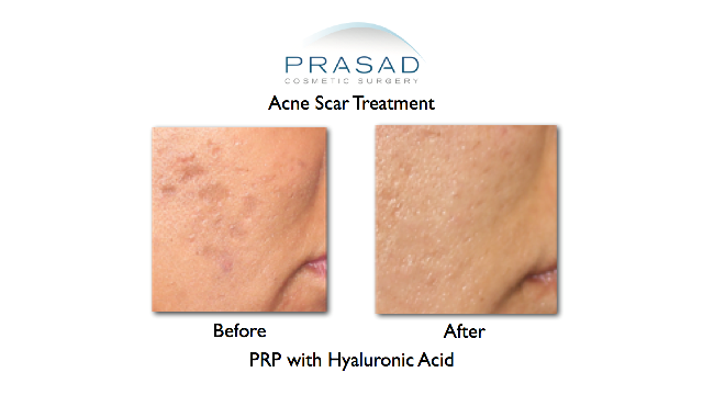 prp treatment for acne scars before and after