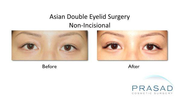 non-incisional double eyelid surgery before and after female