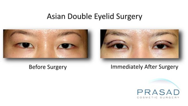 korean double eyelid surgery recovery photo