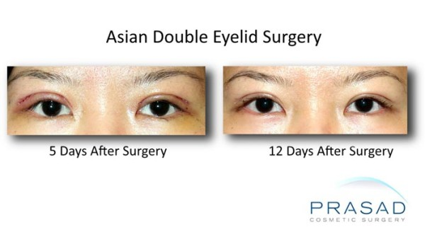 korean eyelid surgery-After procedure