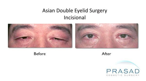 incisional double eyelid surgery male before and after