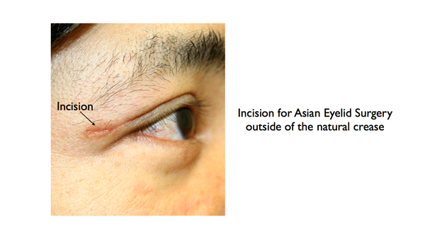 Asian Eyelid -outside natural crease right