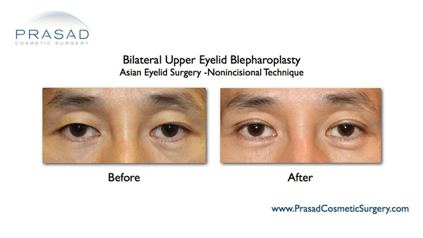 double eyelid surgery male before and after