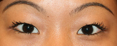 Asian eyelid- no crease