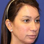 Before Vampire facelift by Dr Amiya Prasad