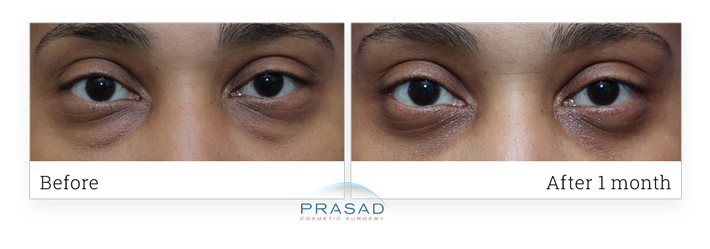 Real patient before and after eye bags removal surgery