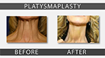 patient photo before and after neck lift