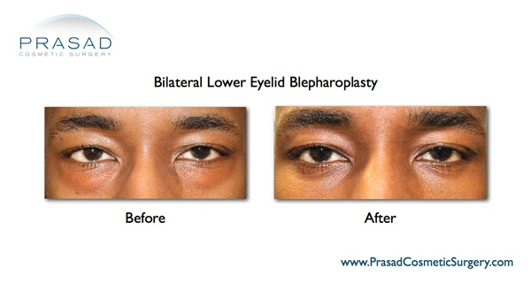 Blepharoplasty African American NYC