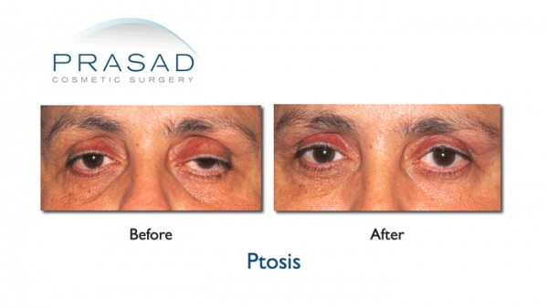 Blepharoplasty Ptosis surgery