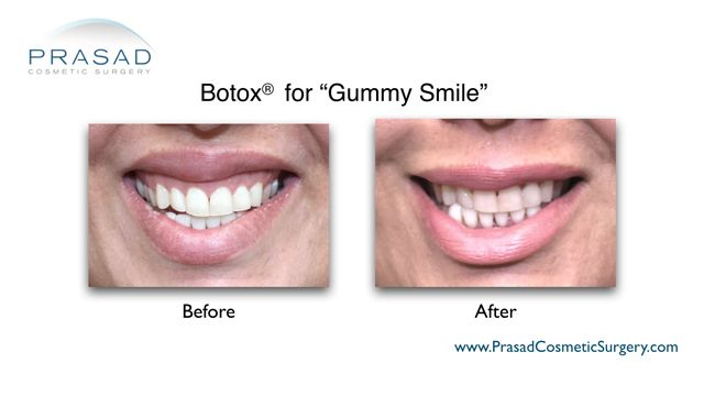 Botox and filler for gummy smile