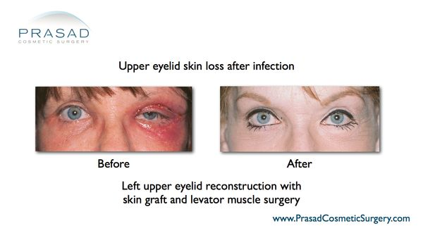 eyelid surgery complication
