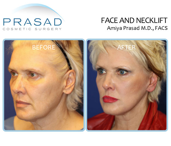 Deep plane facelift and neck lift before and after