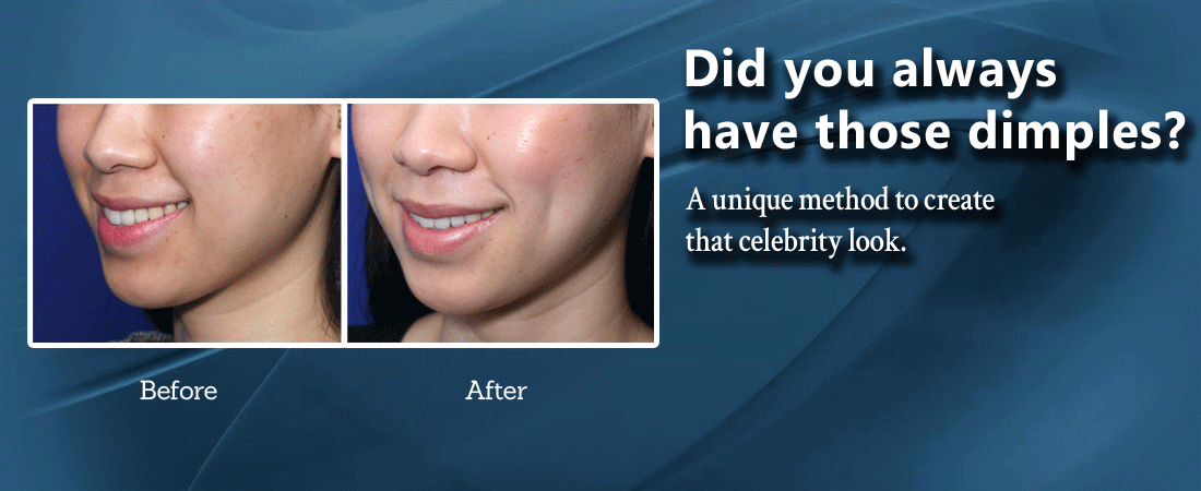 Facelift Surgery | Eyelid Surgery - Dr  Prasad NY