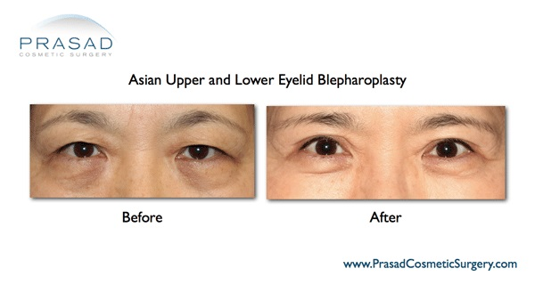 Double eyelid surgery Asian NY