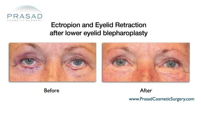 Ectropion and Eyelid Retraction Before and After