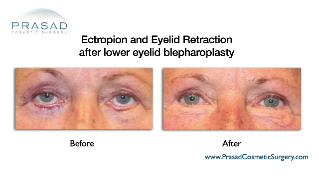 eyelid retraction revision surgery
