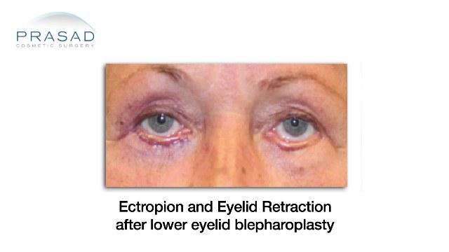 Eyelid Surgery - Revision Specialist - Dr  Amiya Prasad