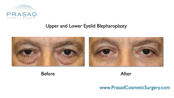Eye Bags- Upper and Lower Eyelid Surgery