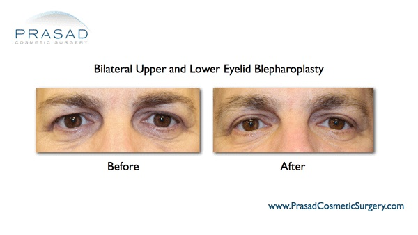 Eye lift surgery-Puffy eye-Male