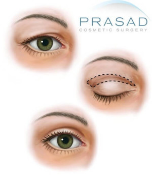 Eyelid surgery-Illustration-Prasad Cosmetic