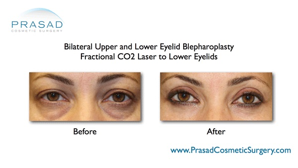 under eye bags-Blepharoplasty