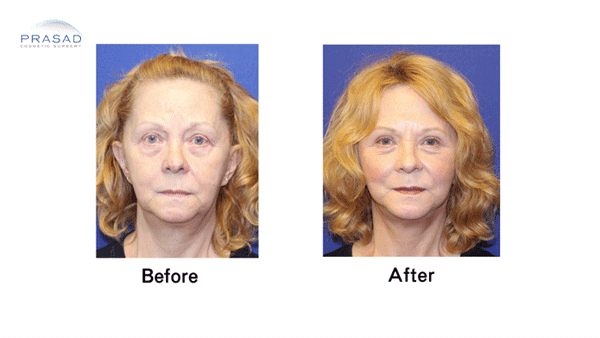 Facelift Patient Before and After Front
