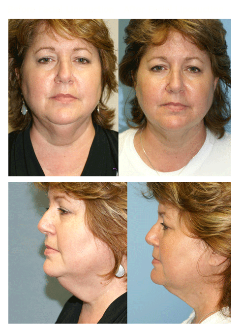 Facial Liposuction Patient Before and After