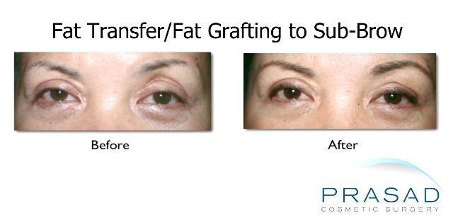 Correction Surgery-Asian Eyelid Surgery