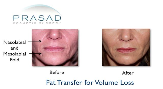 Fat transfer for volume loss
