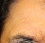 after PRP treatment on forehead