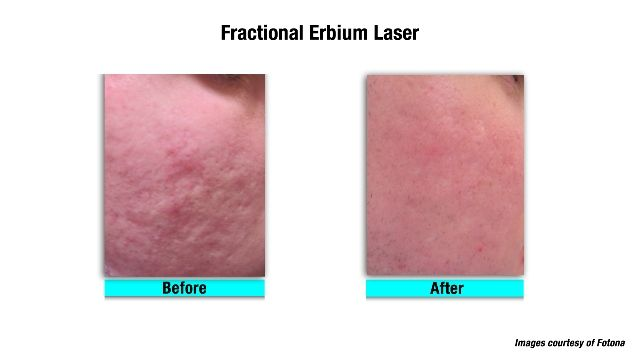 Non-ablative laser treatment of acne scars