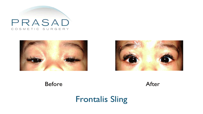 ptosis surgery in children before and after