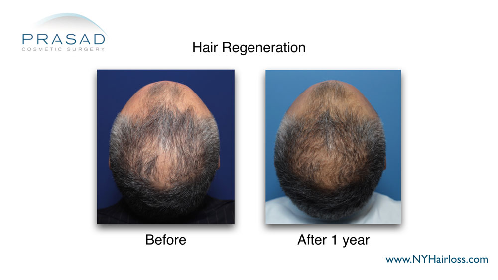 1 year after Hair Regeneration treatment on male pattern hair loss