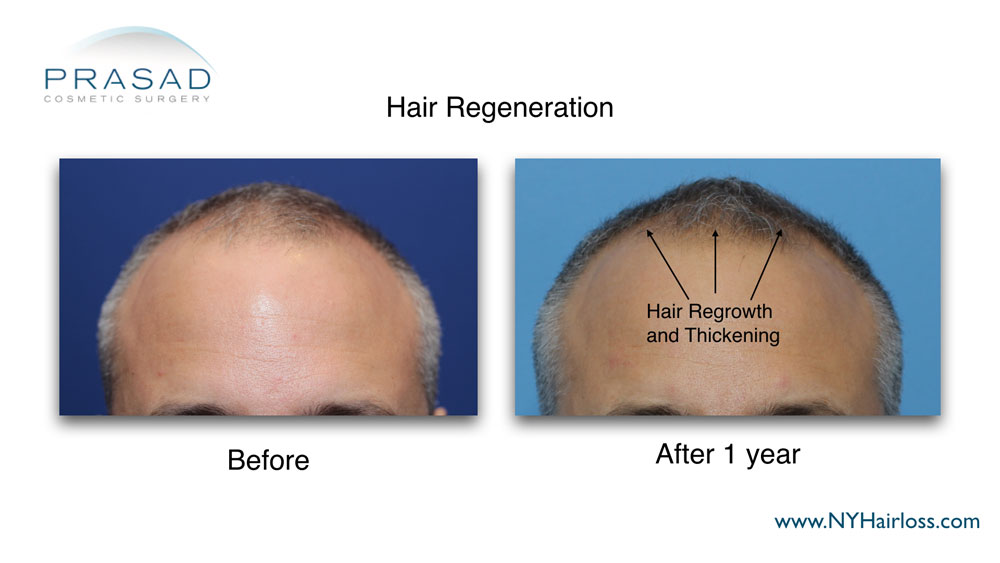 thicker hair 1 year after Hair Regeneration treatment