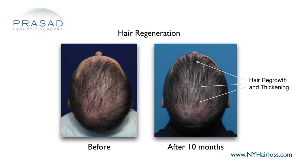 hair regrowth and thickening 10 months after Hair Regeneration treatment
