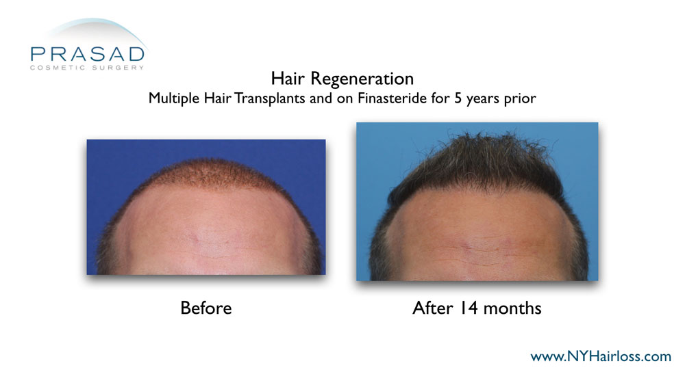 patient had multiple hair transplant and on Finasteride prior to the treatment