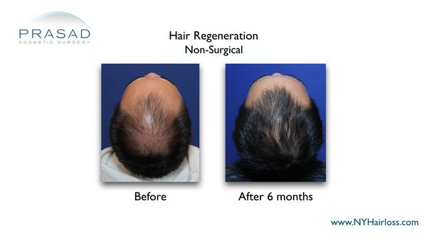 6 months after hair regeneration treatment