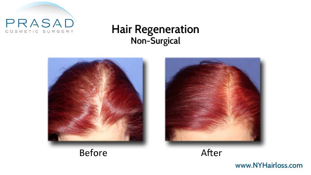 Hair Regeneration treatment's effect on female pattern hair loss