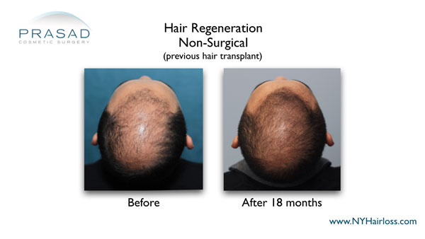 Hair Regeneration treatment can also help people who've had hair transplants
