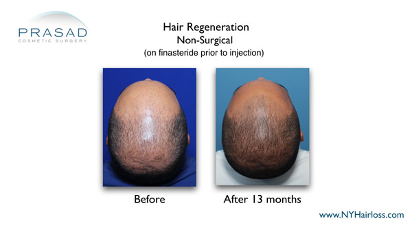 on finasteride prior to hair regeneration treatment