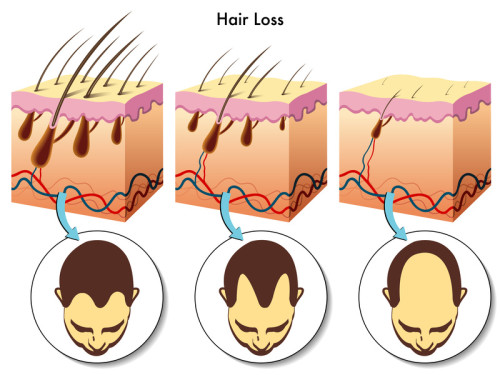 Hair loss process-stages