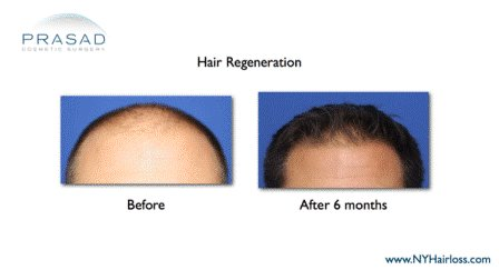 Hair restoration-hair loss treatment