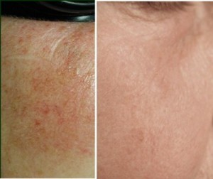Intense Pulsed Light (IPL) Skin Treatment