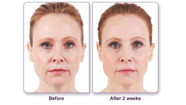 Before and after Juvederm application