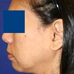 patient's jowls before treatment