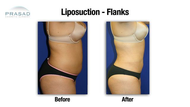 Liposuction before and after female stomach