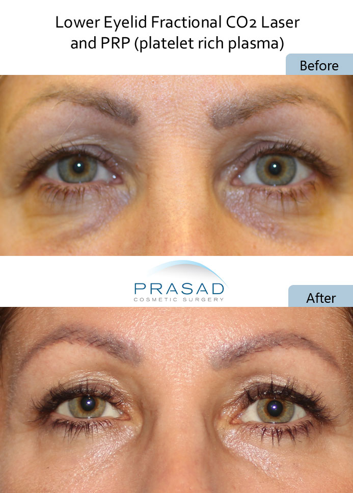 dark circles under eyes treatment with PRP