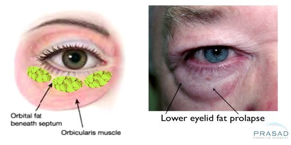 Lower eyelid fat prolapse