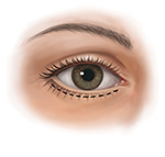 Lower eyelid outside incision