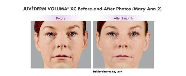 Before and after Voluma treatment to
